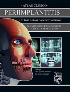 Atlas clínico de periimplantitis