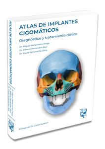 Atlas de implantes cigomáticos